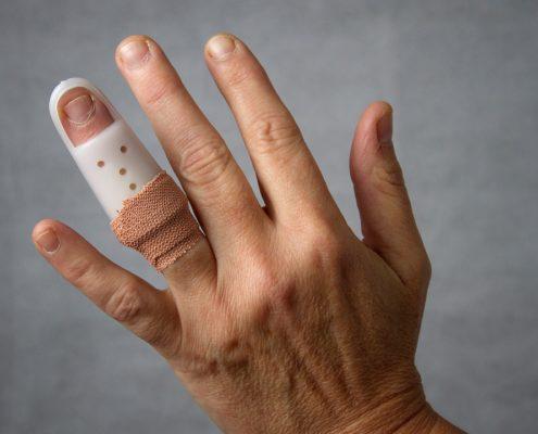¿Cuánto paga la ART por fractura de dedo?